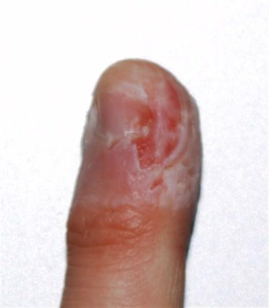 trwte-to derma (2) (524 x 600)