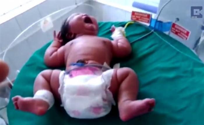 Γέννησε ένα μωρό που ζυγίζει