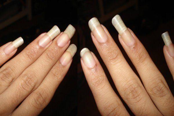 νύχια σας είναι πάντα άσπρα στις άκρες 3
