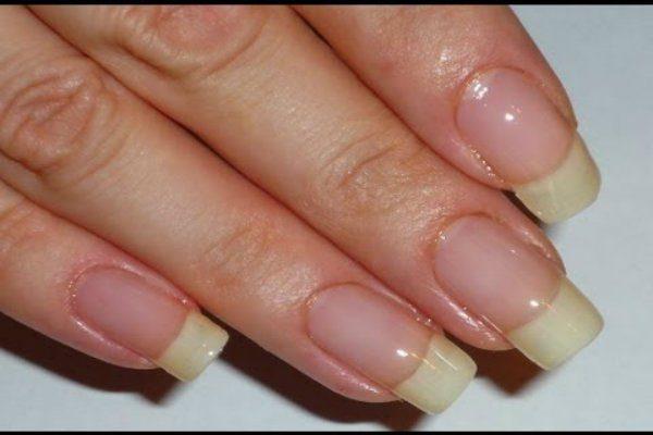 νύχια σας είναι πάντα άσπρα στις άκρες 5