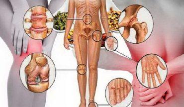 αποκατάστασης οστών