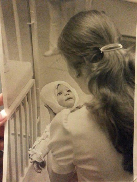 Το 1977 μία Νοσοκόμα κράτησε αυτό το Καμμένο Μωρό… 38 Χρόνια μετά, δεν περίμενε κάτι τέτοιο 2