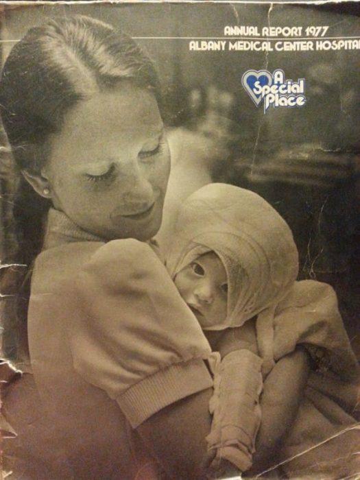 Το 1977 μία Νοσοκόμα κράτησε αυτό το Καμμένο Μωρό… 38 Χρόνια μετά, δεν περίμενε κάτι τέτοιο 3