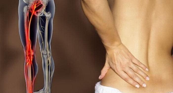 Αντιμετωπίστε την ισχιαλγία και τον πόνο στη μέση 1