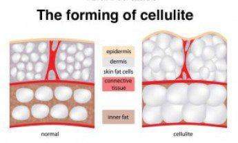 Πέντε λόγοι που η κυτταρίτιδα εμφανίζετε απο το πουθενά και μια φυσικη κρέμα που κάνει θραύση 2