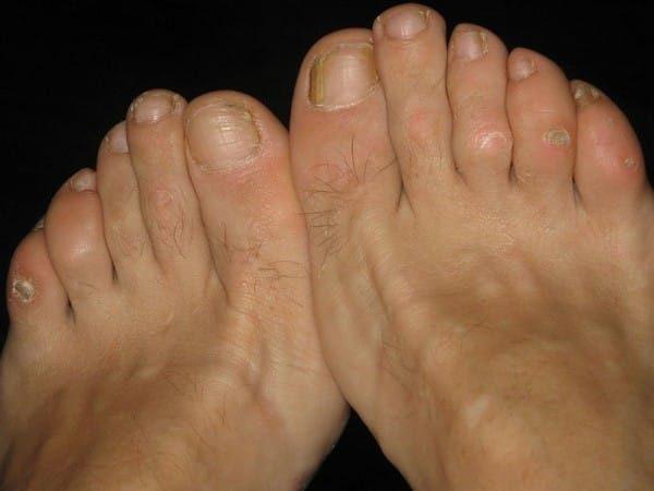 Ρόζοι και κάλοι: Σπιτικές θεραπείες για απαλά πόδια.  2
