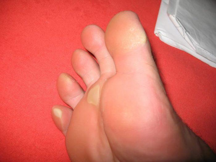 Ρόζοι και κάλοι: Σπιτικές θεραπείες για απαλά πόδια.  1