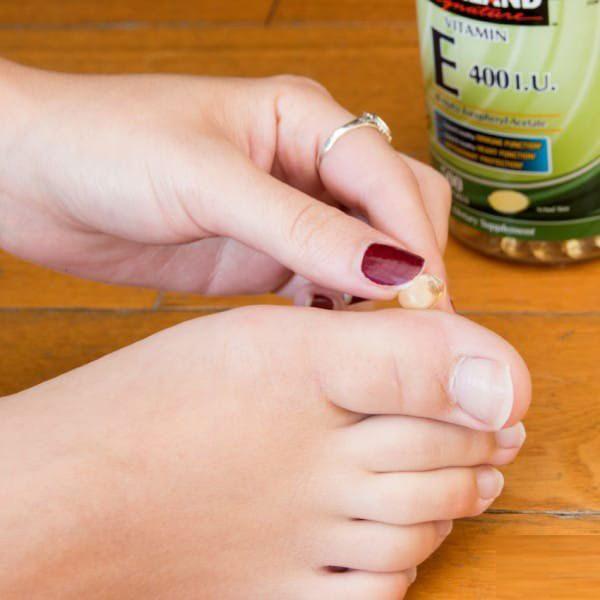 Ρόζοι και κάλοι: Σπιτικές θεραπείες για απαλά πόδια.  4