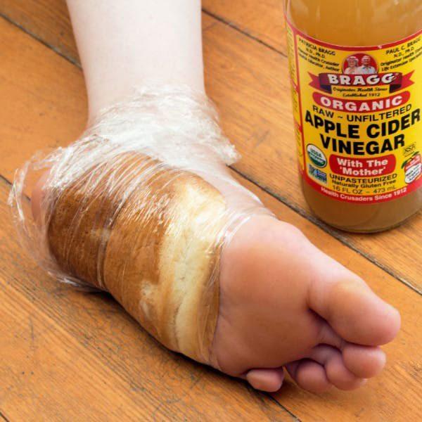Ρόζοι και κάλοι: Σπιτικές θεραπείες για απαλά πόδια.  7