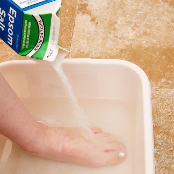 Ρόζοι και κάλοι: Σπιτικές θεραπείες για απαλά πόδια.  10