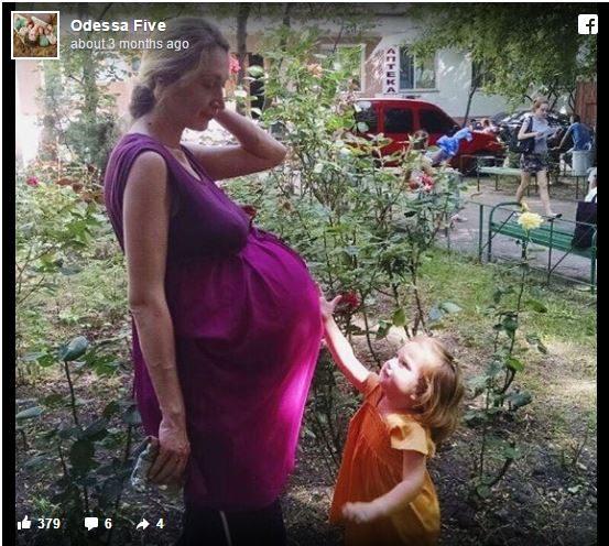 Μόλις οι γιατροί είδαν το υπερηχογράφημα της εγκύου φοβήθηκαν 5